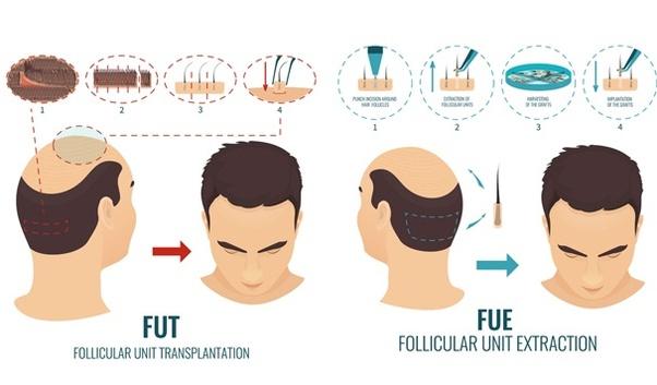 Greffe de cheveux FUE ou FUT