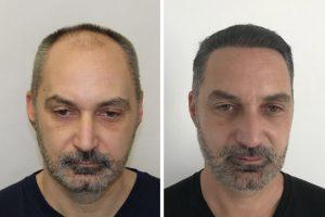 Résultat photos avant après greffe de cheveux – Budapest, Hongrie
